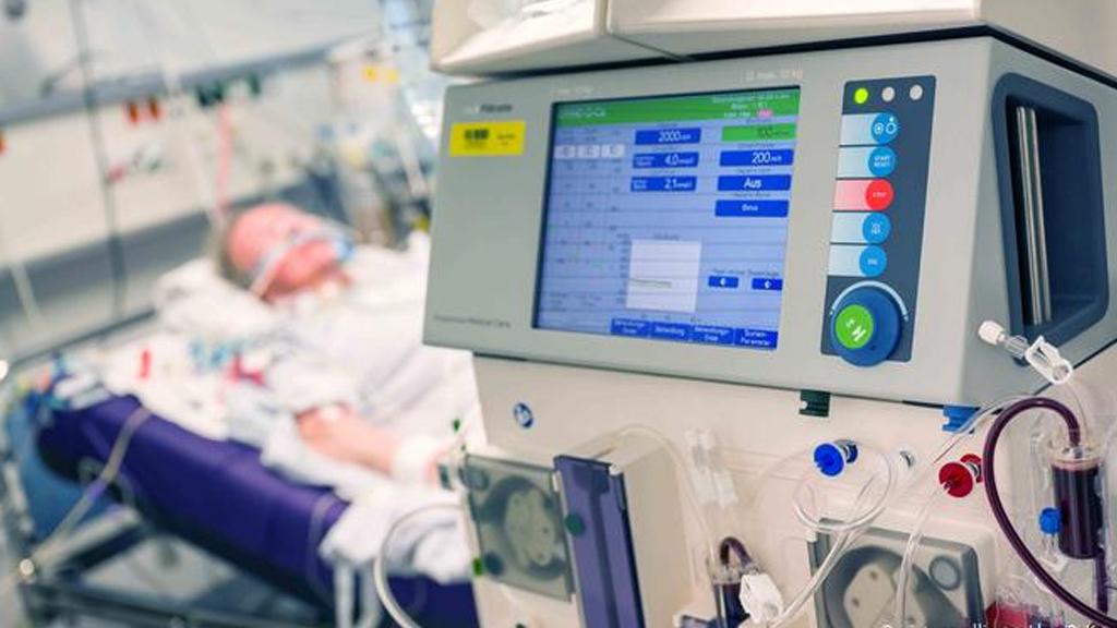 Covid-19 Intensive Care Unit Ventilator Project
